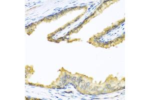 Immunohistochemistry (Paraffin-embedded Sections) (IHC (p)) image for anti-Proenkephalin (PENK) antibody (ABIN2985321)