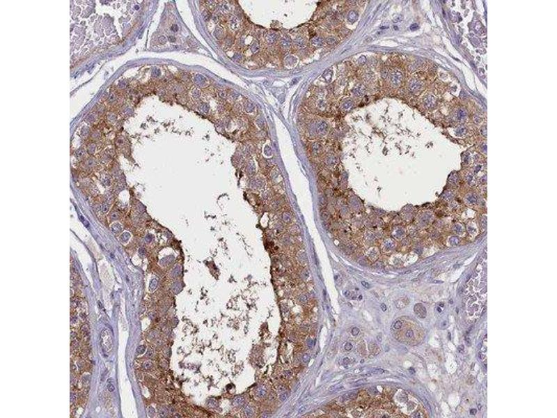 Immunohistochemistry (Paraffin-embedded Sections) (IHC (p)) image for anti-Coronin, Actin Binding Protein, 2A (CORO2A) antibody (ABIN4300091)