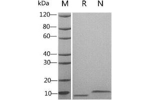 SDS-PAGE (SDS) image for Epidermal Growth Factor (EGF) (Active) protein (ABIN987821)