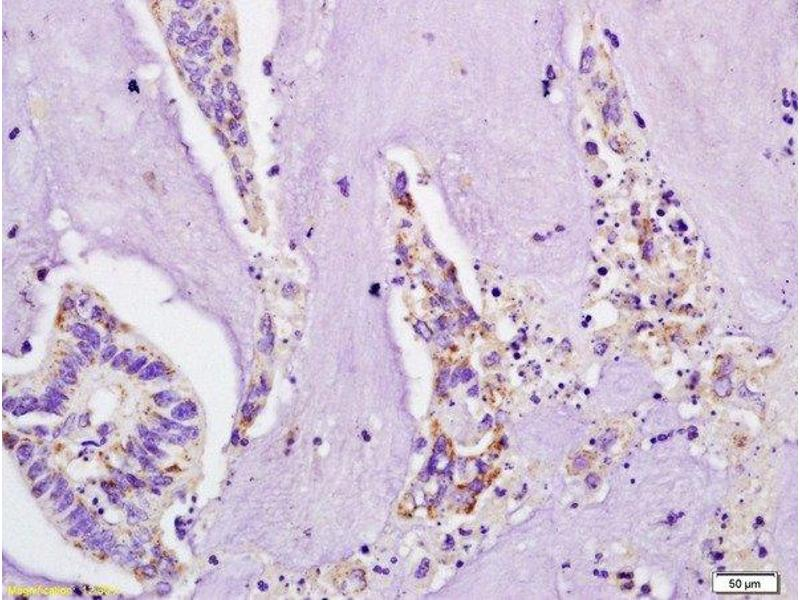 Immunohistochemistry (Paraffin-embedded Sections) (IHC (p)) image for anti-Interleukin 4 Receptor (IL4R) (AA 200-232) antibody (ABIN740565)