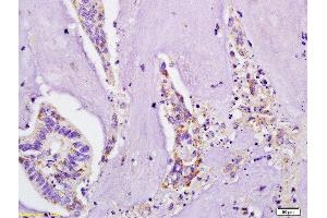 Immunohistochemistry (Paraffin-embedded Sections) (IHC (p)) image for anti-IL4 Receptor antibody (Interleukin 4 Receptor) (AA 200-232) (ABIN740565)