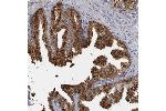 Immunohistochemistry (Paraffin-embedded Sections) (IHC (p)) image for anti-Solute Carrier Family 25 (Mitochondrial Carrier: Glutamate), Member 22 (SLC25A22) antibody (ABIN4354147)