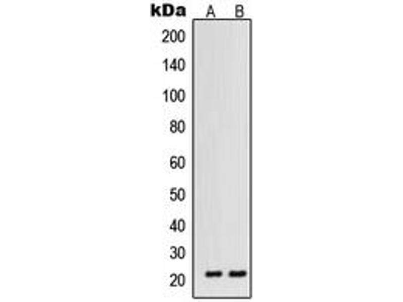 Western Blotting (WB) image for anti-Vascular Endothelial Growth Factor B (VEGFB) (Center) antibody (ABIN2707243)