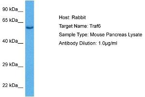 Image no. 1 for anti-TNF Receptor-Associated Factor 6 (TRAF6) (C-Term) antibody (ABIN2779328)