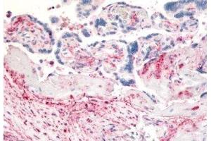 Immunohistochemistry (Paraffin-embedded Sections) (IHC (p)) image for anti-Dipeptidyl-Peptidase 4 (DPP4) antibody (ABIN188903)