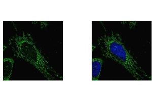 Image no. 4 for anti-Succinate-CoA Ligase, alpha Subunit (SUCLG1) (full length) antibody (ABIN2856658)