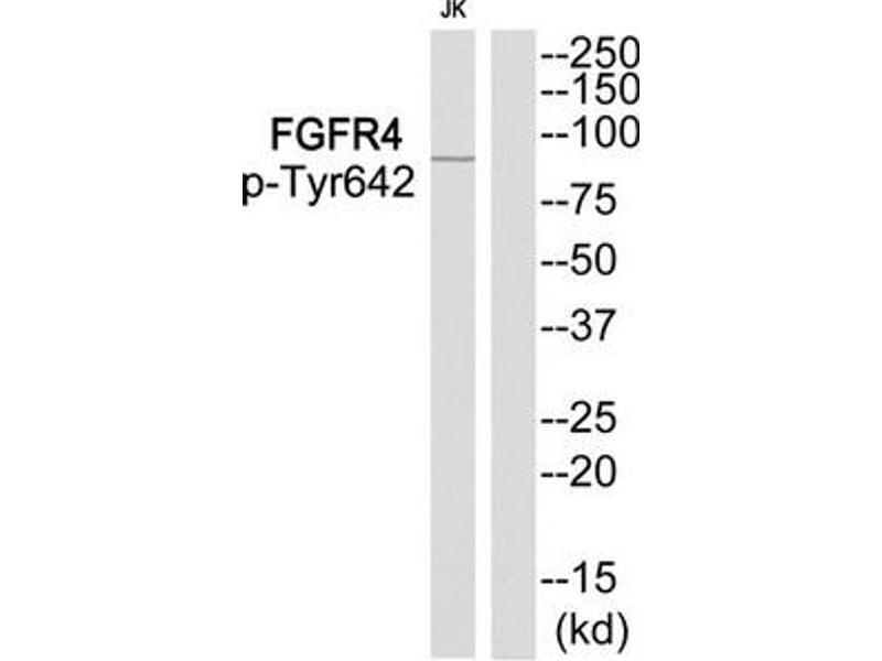 Western Blotting (WB) image for anti-FGFR4 antibody (Fibroblast Growth Factor Receptor 4) (pTyr642) (ABIN2439801)
