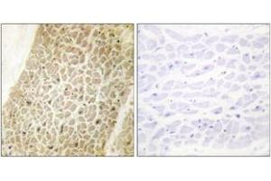 Image no. 2 for anti-A Kinase (PRKA) Anchor Protein 8 (AKAP8) (AA 331-380) antibody (ABIN1533512)