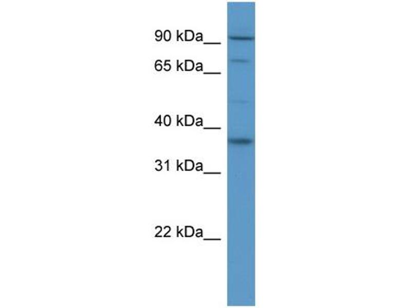 Western Blotting (WB) image for anti-Fibroblast Growth Factor Receptor 2 (FGFR2) (Middle Region) antibody (ABIN2788320)