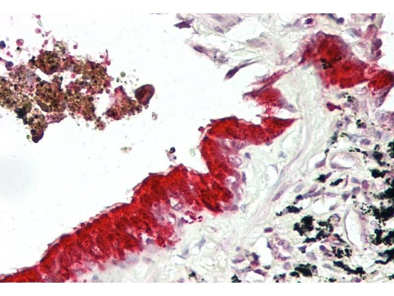 Immunohistochemistry (IHC) image for anti-MAX Interactor 1 (MXI1) (Middle Region) antibody (ABIN2777279)
