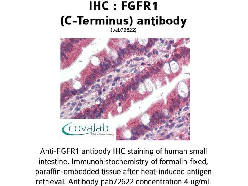 image for anti-FGFR1 antibody (Fibroblast Growth Factor Receptor 1) (C-Term) (ABIN1734340)