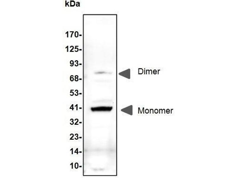 Western Blotting (WB) image for anti-IGFBP5 antibody (Insulin-Like Growth Factor Binding Protein 5) (ABIN2862628)