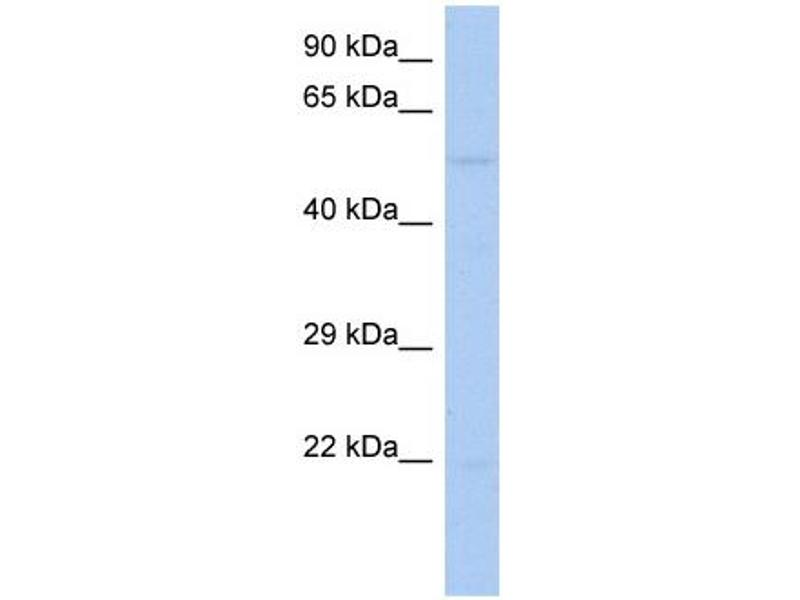 Western Blotting (WB) image for anti-Receptor-Interacting serine-threonine Kinase 3 (RIPK3) (Middle Region) antibody (ABIN504563)