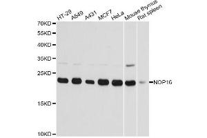 Image no. 1 for anti-NOP16 Nucleolar Protein Homolog (Yeast) (NOP16) antibody (ABIN6568282)