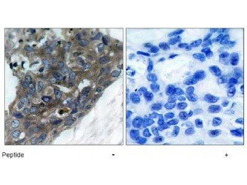Immunohistochemistry (IHC) image for anti-MAP3K5 antibody (Mitogen-Activated Protein Kinase Kinase Kinase 5) (ABIN4281869)