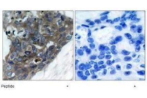 Immunohistochemistry (IHC) image for anti-Mitogen-Activated Protein Kinase Kinase Kinase 5 (MAP3K5) antibody (ABIN4281869)
