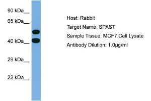 Western Blotting (WB) image for anti-Spastin antibody (SPAST) (Middle Region) (ABIN2774193)
