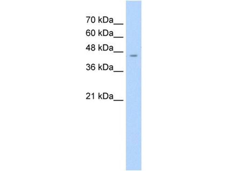 Western Blotting (WB) image for anti-Argininosuccinate Synthase 1 (ASS1) (C-Term) antibody (ABIN2776769)