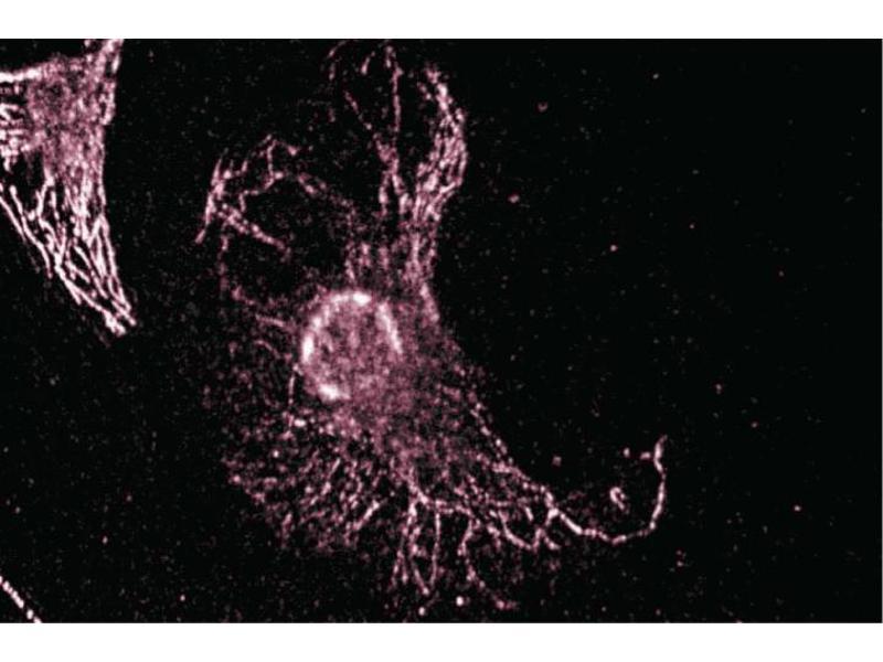 Immunofluorescence (IF) image for anti-Thyroid Hormone Receptor Interactor 10 (TRIP10) (AA 411-501) antibody (ABIN968876)