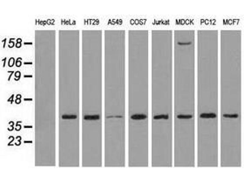 image for anti-Mitogen-Activated Protein Kinase 1 (MAPK1) antibody (ABIN1499287)