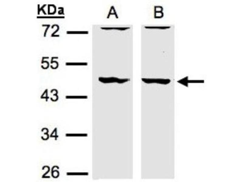 Western Blotting (WB) image for anti-DBNL antibody (Drebrin-Like) (ABIN441067)