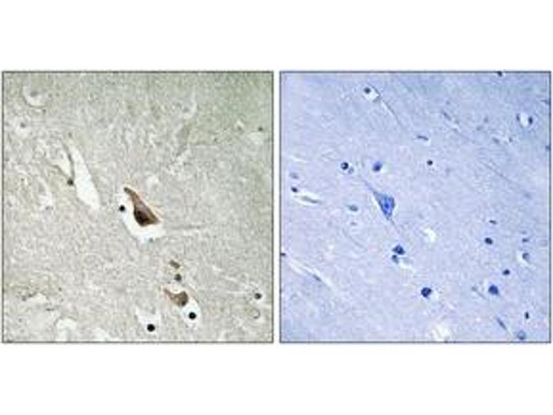 Immunohistochemistry (IHC) image for anti-Mitogen-Activated Protein Kinase Kinase Kinase 7 (MAP3K7) (AA 411-460), (pSer439) antibody (ABIN1532056)