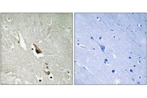 Immunohistochemistry (IHC) image for anti-MAP3K7 antibody (Mitogen-Activated Protein Kinase Kinase Kinase 7) (pSer439) (ABIN1532056)