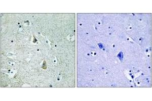 Image no. 2 for anti-Small Nuclear Ribonucleoprotein Polypeptide E (SNRPE) (AA 411-460), (pSer446) antibody (ABIN1532038)