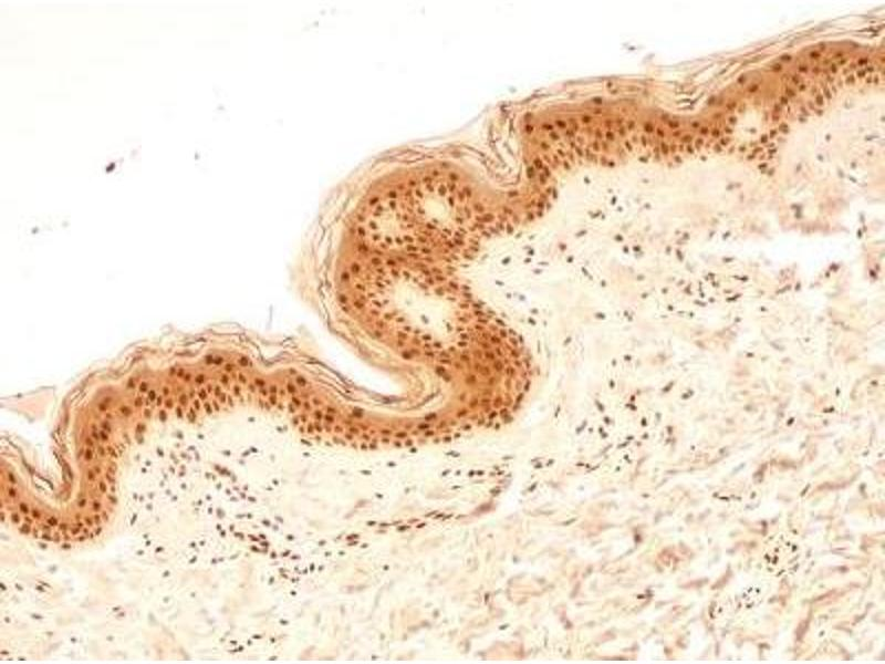 Immunohistochemistry (Paraffin-embedded Sections) (IHC (p)) image for anti-Nuclear Mitotic Apparatus Protein 1 (NUMA1) antibody (ABIN152988)