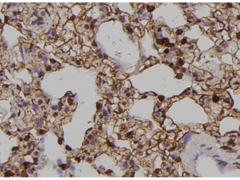 Image no. 1 for anti-EPH Receptor A2 (EPHA2) (pTyr588) antibody (ABIN6269973)