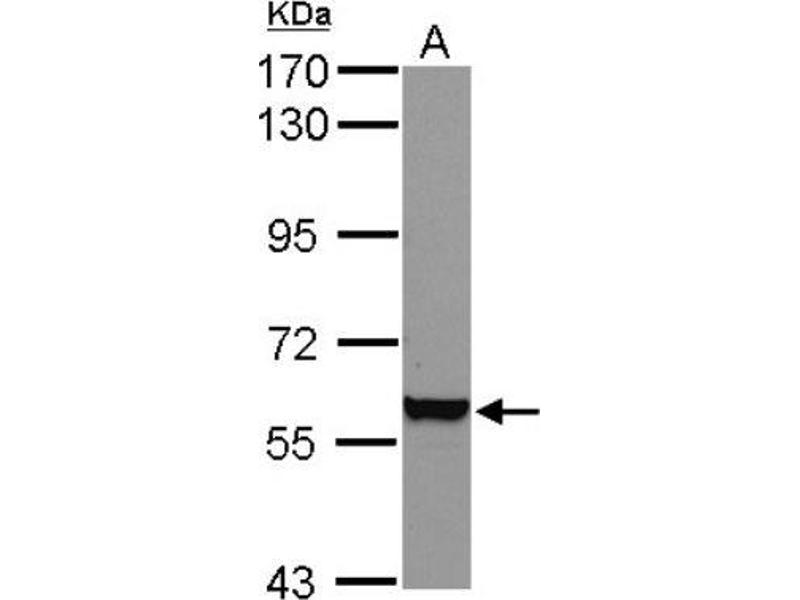 Western Blotting (WB) image for anti-Vimentin antibody (VIM) (Center) (ABIN441334)