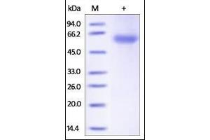 SDS-PAGE (SDS) image for Adiponectin (ADIPOQ) (AA 19-244) (Active) protein (Fc Tag) (ABIN2180566)