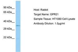 Image no. 1 for anti-G Protein-Coupled Receptor 21 (GPR21) (AA 197-246) antibody (ABIN6750101)