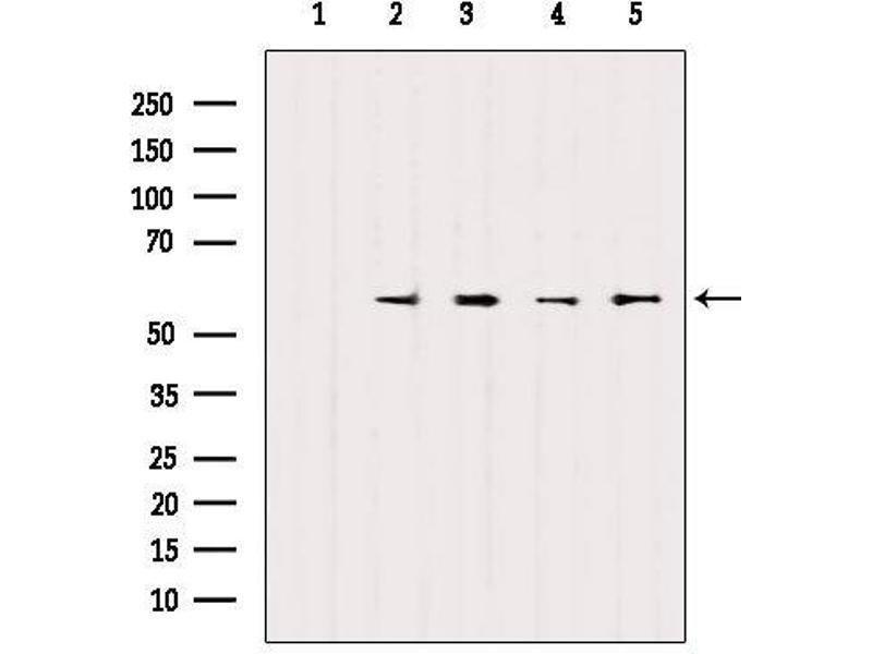Western Blotting (WB) image for anti-SRY (Sex Determining Region Y)-Box 9 (SOX9) antibody (ABIN6265242)