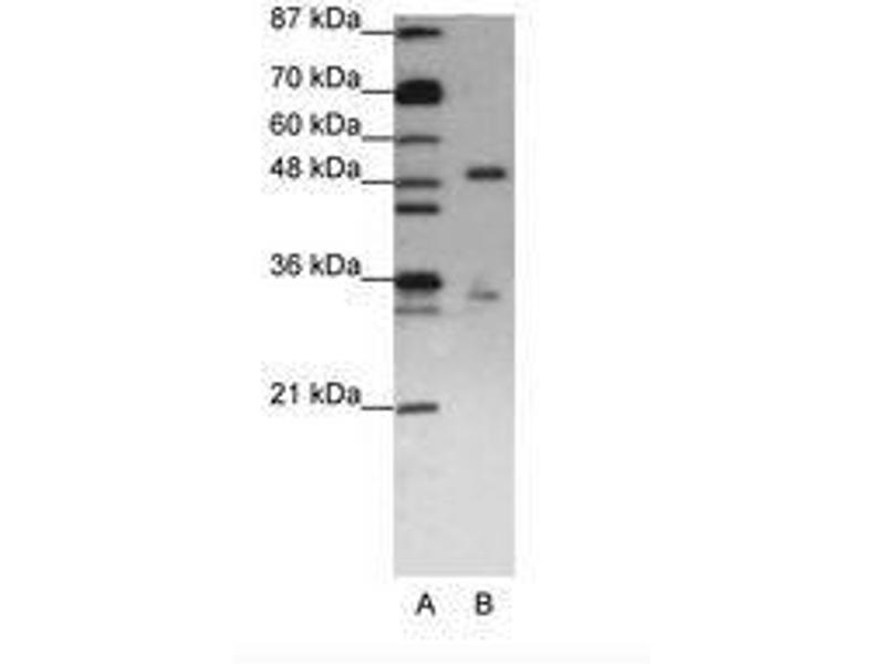 image for anti-UPF3 Regulator of Nonsense Transcripts Homolog B (Yeast) (UPF3B) (N-Term) antibody (ABIN203166)
