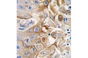 Image no. 2 for anti-Cytochrome P450, Family 2, Subfamily W, Polypeptide 1 (CYP2W1) (N-Term) antibody (ABIN360102)