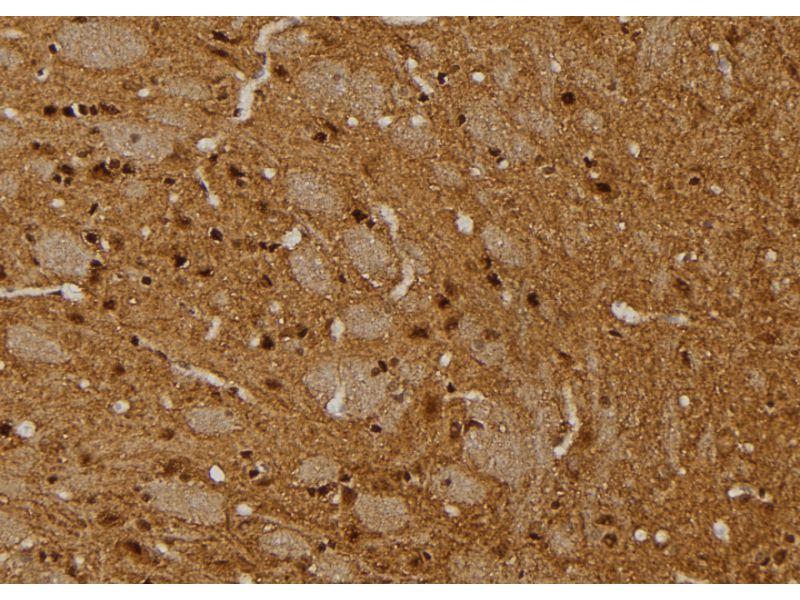 Immunohistochemistry (IHC) image for anti-Progesterone Receptor (PGR) antibody (ABIN6264438)