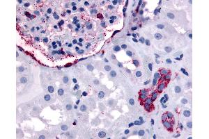 Immunohistochemistry (IHC) image for anti-V-Erb-A erythroblastic Leukemia Viral Oncogene Homolog 4 (Avian) (ERBB4) (Internal Region) antibody (ABIN1048578)