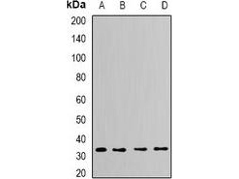Western Blotting (WB) image for anti-Capping Protein (Actin Filament) Muscle Z-Line, alpha 2 (CAPZA2) antibody (ABIN2966492)