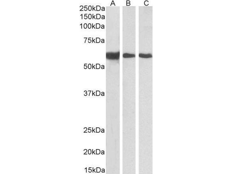 Western Blotting (WB) image for Desmin (DES) peptide (ABIN369745)