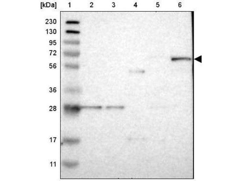 Western Blotting (WB) image for anti-RAS Guanyl Releasing Protein 2 (Calcium and DAG-Regulated) (RASGRP2) antibody (ABIN4349420)