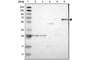 Western Blotting (WB) image for anti-RASGRP2 抗体 (RAS Guanyl Releasing Protein 2 (Calcium and DAG-Regulated)) (ABIN4349420)
