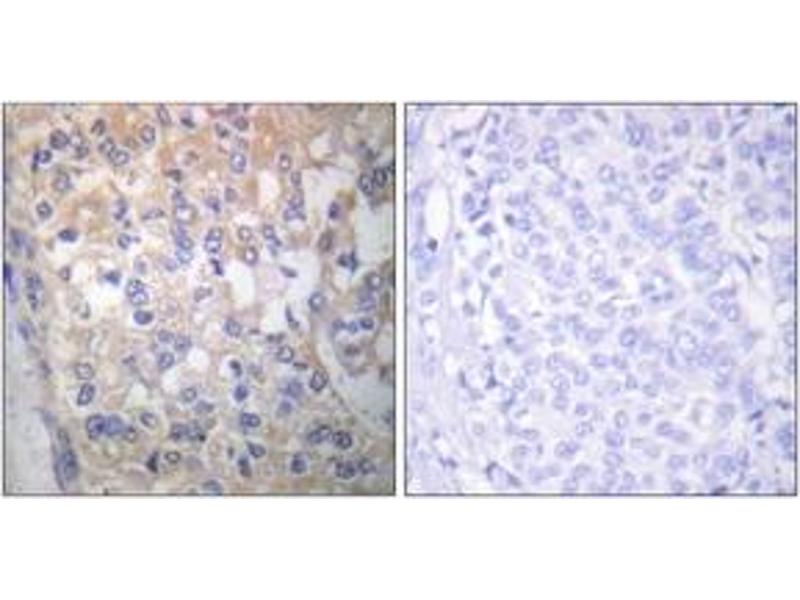 Immunohistochemistry (IHC) image for anti-FYN Oncogene Related To SRC, FGR, YES (FYN) (pTyr531), (AA 488-537) antibody (ABIN1531275)
