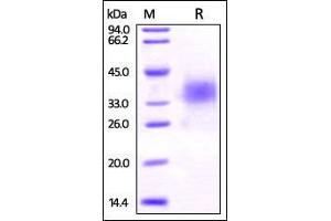 Image no. 1 for V-Set Domain Containing T Cell Activation Inhibitor 1 (VTCN1) (AA 33-194) protein (His tag) (ABIN2870802)