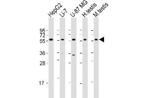 Image no. 3 for anti-7-Dehydrocholesterol Reductase (DHCR7) (AA 437-463), (C-Term) antibody (ABIN655399)