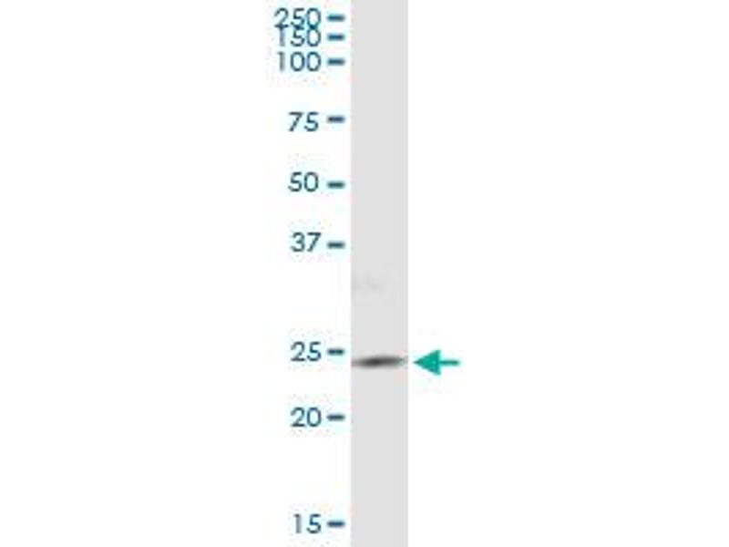 Immunoprecipitation (IP) image for anti-Phosphatidylinositol-4-Phosphate 5-Kinase, Type I, gamma (PIP5K1C) (AA 561-667), (partial) antibody (ABIN525139)