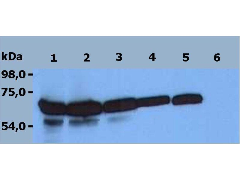 Western Blotting (WB) image for anti-zeta-Chain (TCR) Associated Protein Kinase 70kDa (ZAP70) (C-Term) antibody (ABIN125756)