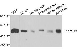 Image no. 1 for anti-Protein Phosphatase 1, Catalytic Subunit, gamma Isoform (PPP1CC) antibody (ABIN6569622)