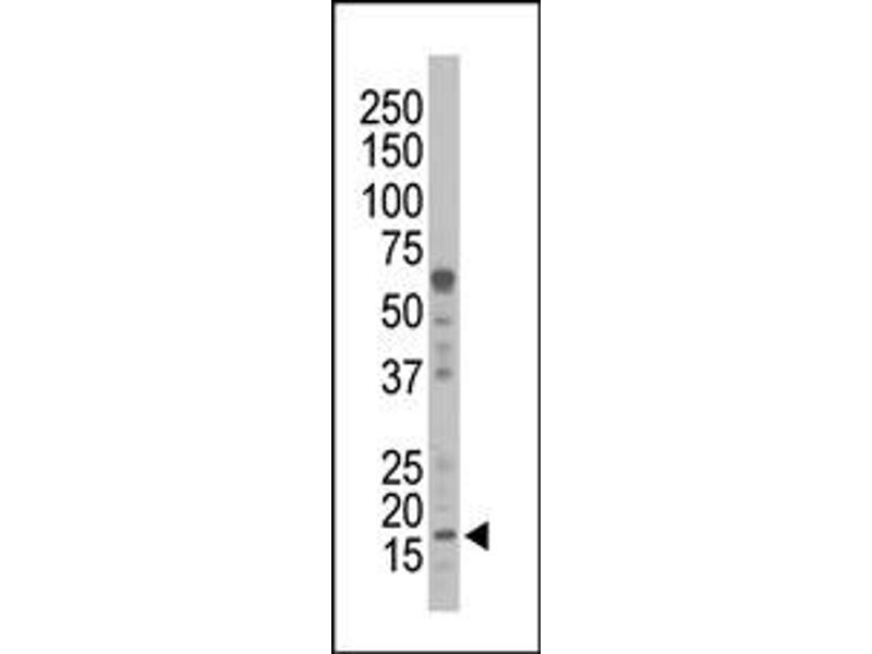 image for anti-NME1 antibody (Non-Metastatic Cells 1, Protein (NM23A) Expressed in) (N-Term) (ABIN360544)