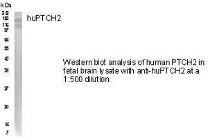 Western Blotting (WB) image for anti-Patched 2 (PTCH2) (AA 226-235) antibody (ABIN152263)